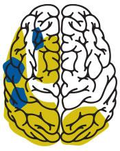 Autism Spectrum Disorder brain (ASD)